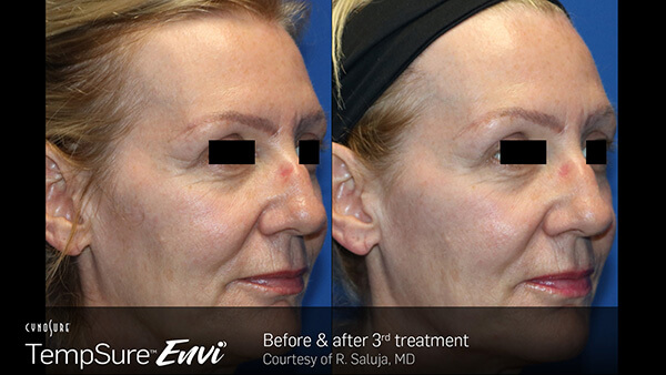 before and after photos for TempSure Envi treatments