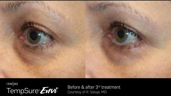 Before and after TempSure Envi treatments