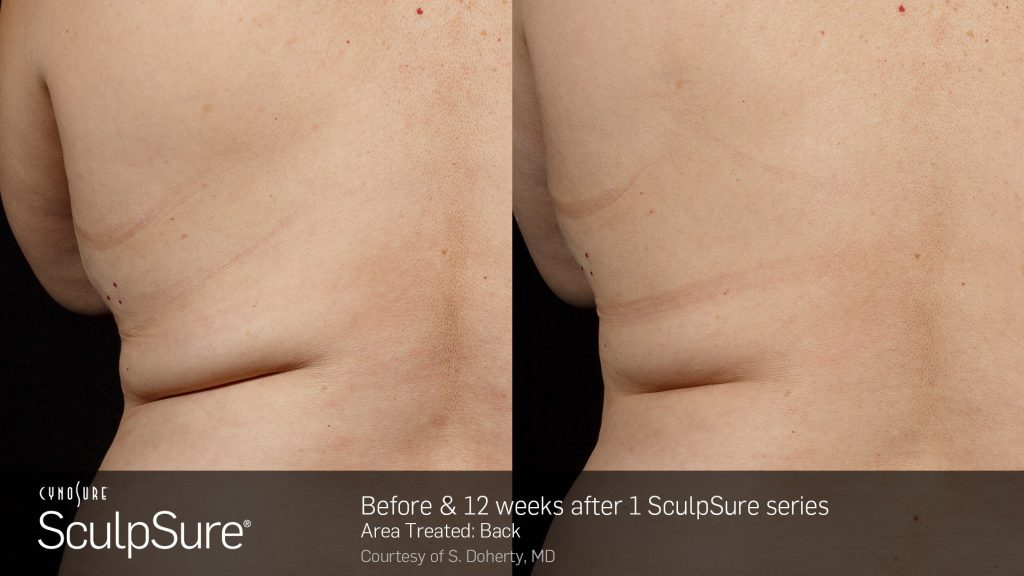 SculpSure before and after photos of back fat