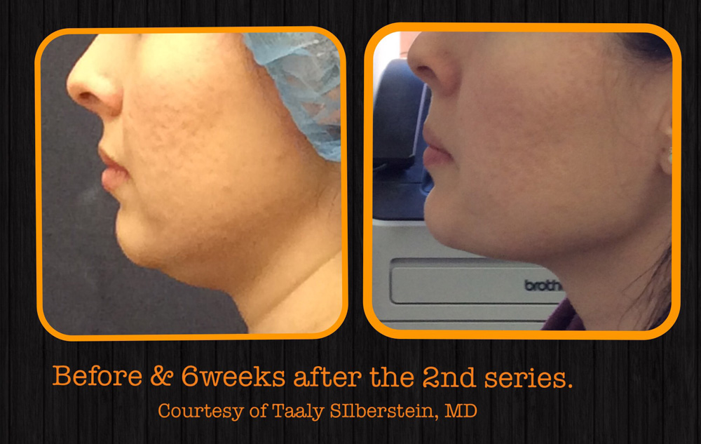 Chin fat reduction in Tarzana - Los Angeles